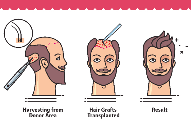 Will You Look Natural After Hair Transplant Surgery ?