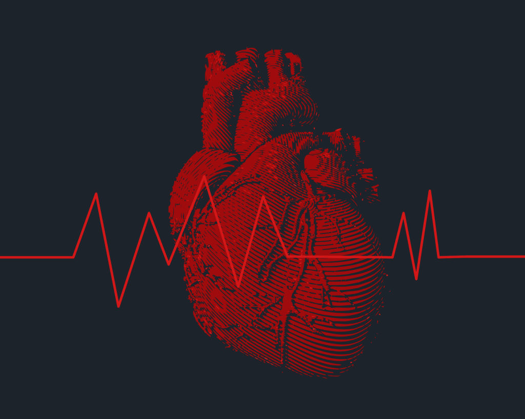 What is arrhythmia Causes, Diagnosis and Treatment